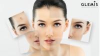 Cele mai bune tratamente pentru acnee